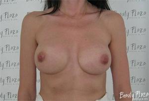 резкое увеличение груди